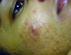 acne treatments glasgow